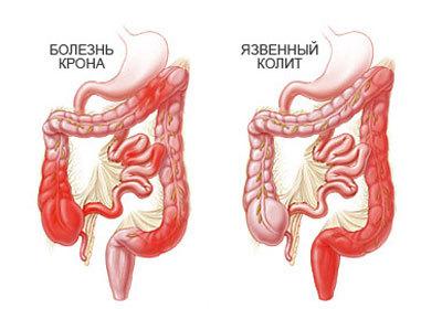 Прямая кишка: заболевания, симптомы, лечение