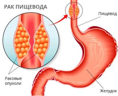 Опухоль пищевода: симптомы, причины развития и диагностика
