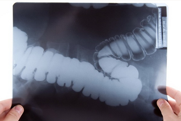 Аноскопия: что это такое, противопоказания и подготовка к процедуре