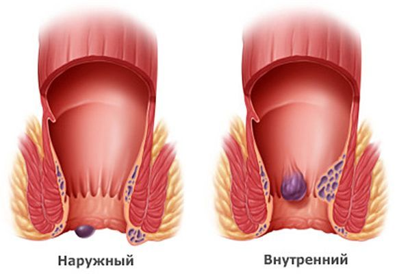 Лечение геморройных узлов - все способы лечения