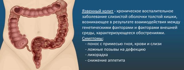 Боль в животе и понос без температуры - причины и лечение
