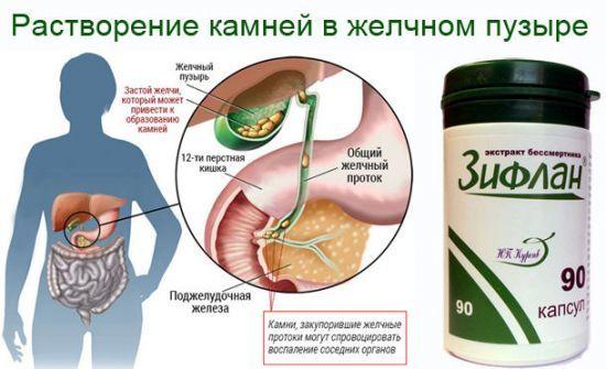 Песок в желчном пузыре: симптомы, лечение - Все о пищеварении человека