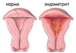 Тяжесть внизу живота: причины у женщин, описание подробно